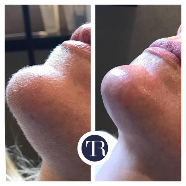 Dermaplaning Facial Ballymena